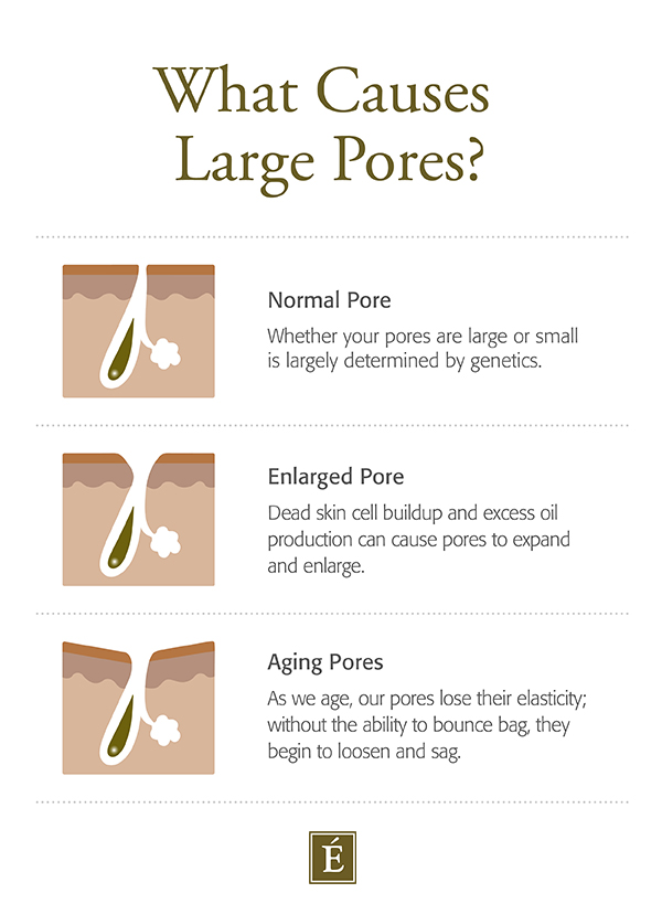 What Causes Large Pores?